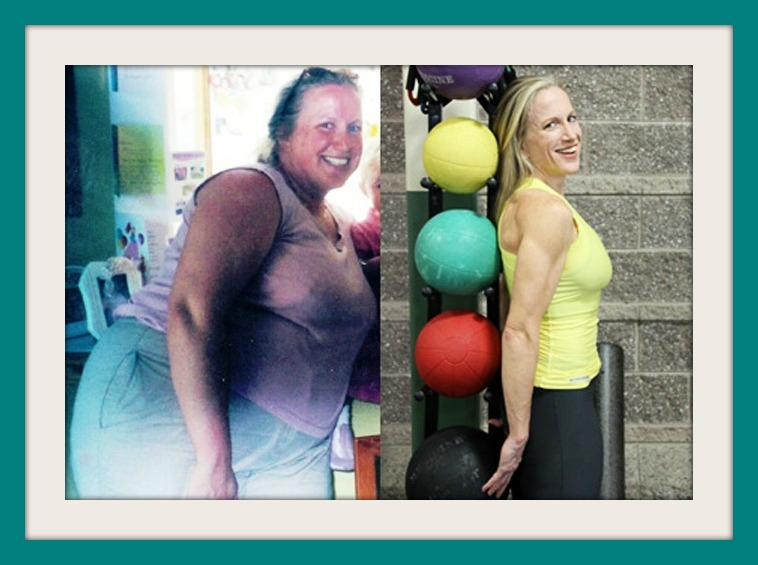 17 robanne-r-gastric-bypass side by side with yellow 300 cropped